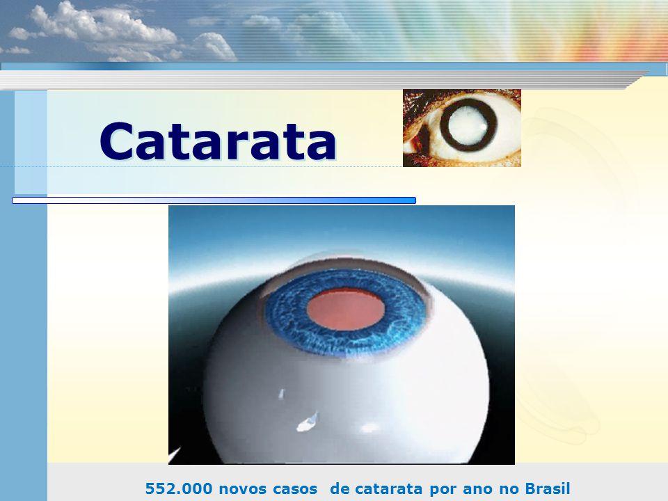 Catarata 552.000 novos casos de catarata por ano no Brasil