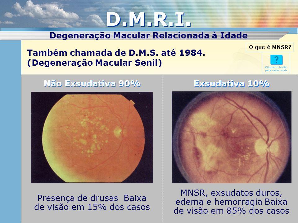 Não Exsudativa 90% Exsudativa 10% MNSR, exsudatos duros, edema e hemorragia Baixa de visão em 85% dos casos Presença de drusas Baixa de visão em 15% d