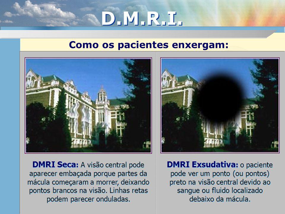DMRI Seca : A visão central pode aparecer embaçada porque partes da mácula começaram a morrer, deixando pontos brancos na visão. Linhas retas podem pa
