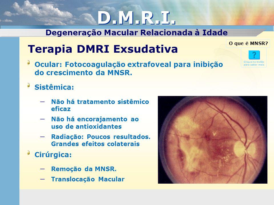 D.M.R.I. Degeneração Macular Relacionada à Idade Terapia DMRI Exsudativa Clique no botão para saber mais Ocular: Fotocoagulação extrafoveal para inibi