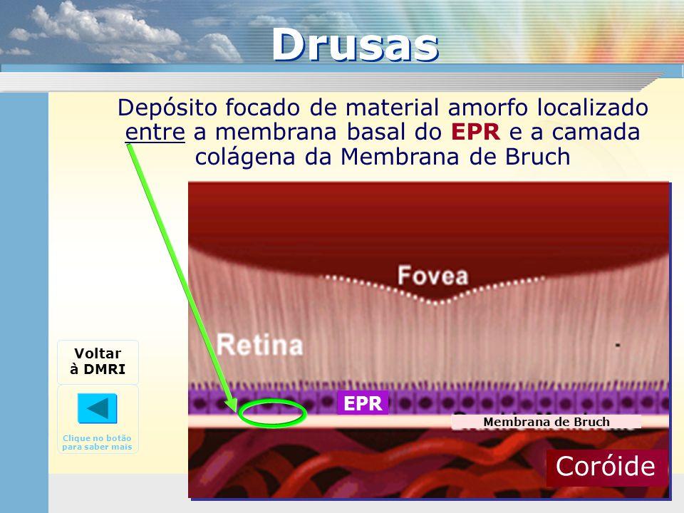 Depósito focado de material amorfo localizado entre a membrana basal do EPR e a camada colágena da Membrana de Bruch Drusas Voltar à DMRI Clique no bo