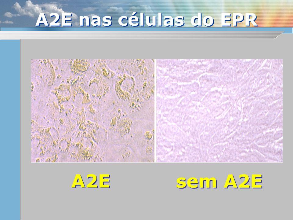 A2E sem A2E A2E nas células do EPR