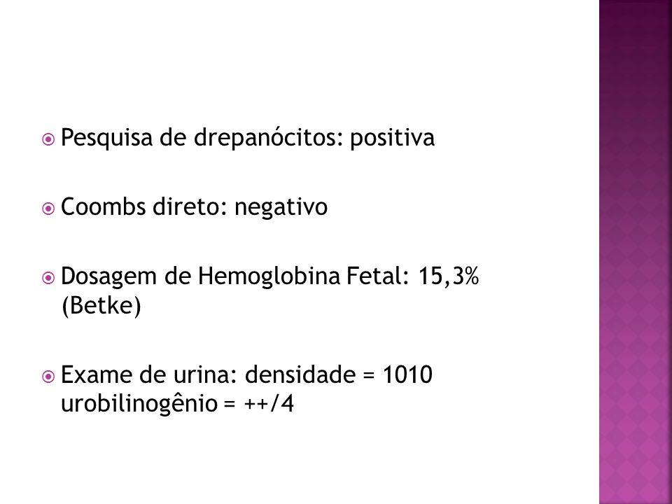  Pesquisa de drepanócitos: positiva  Coombs direto: negativo  Dosagem de Hemoglobina Fetal: 15,3% (Betke)  Exame de urina: densidade = 1010 urobilinogênio = ++/4