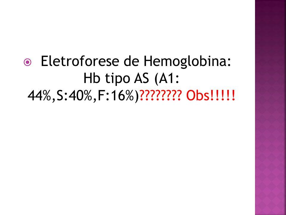  Eletroforese de Hemoglobina: Hb tipo AS (A1: 44%,S:40%,F:16%)???????? Obs!!!!!