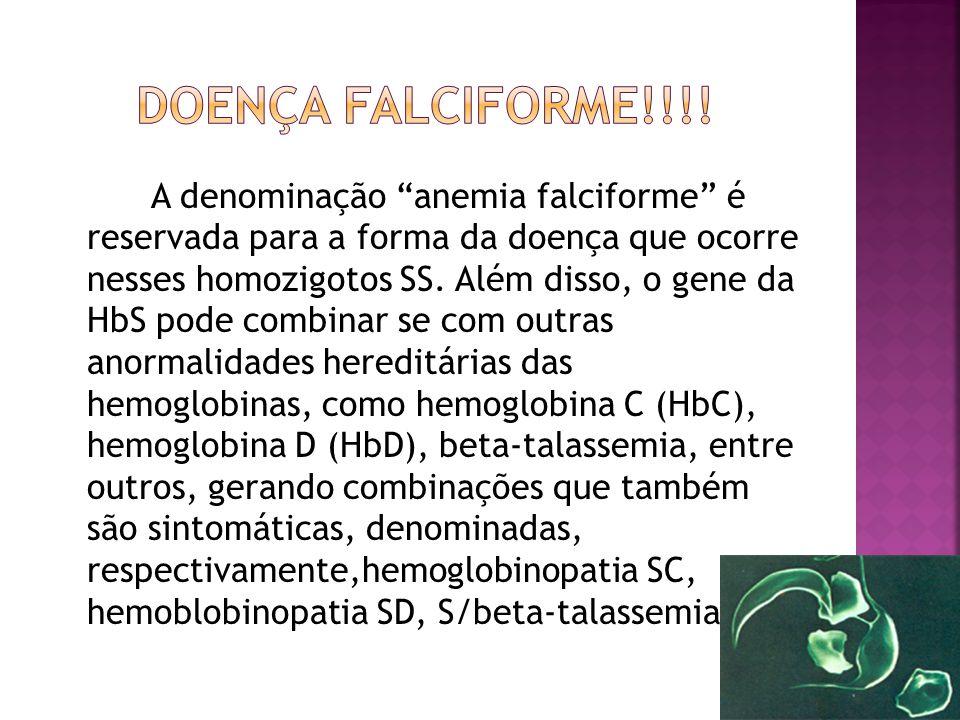 """A denominação """"anemia falciforme"""" é reservada para a forma da doença que ocorre nesses homozigotos SS. Além disso, o gene da HbS pode combinar se com"""