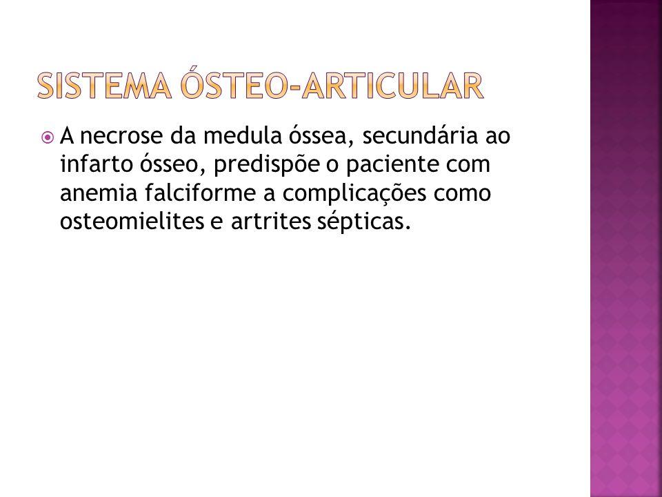  A necrose da medula óssea, secundária ao infarto ósseo, predispõe o paciente com anemia falciforme a complicações como osteomielites e artrites sépt