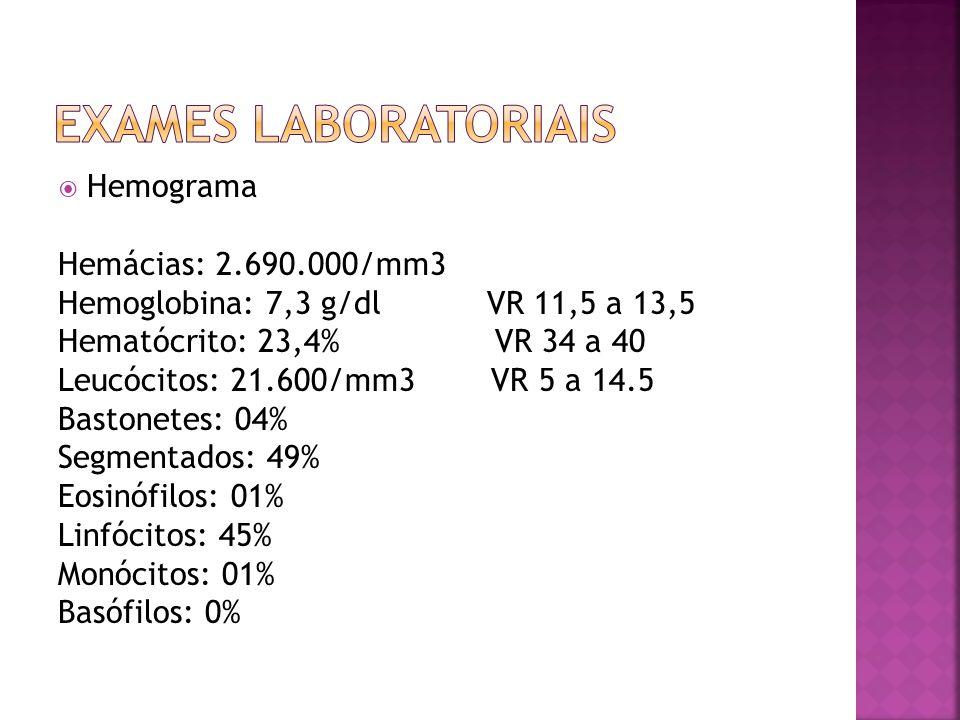  Hemograma Hemácias: 2.690.000/mm3 Hemoglobina: 7,3 g/dl VR 11,5 a 13,5 Hematócrito: 23,4% VR 34 a 40 Leucócitos: 21.600/mm3 VR 5 a 14.5 Bastonetes: 04% Segmentados: 49% Eosinófilos: 01% Linfócitos: 45% Monócitos: 01% Basófilos: 0%