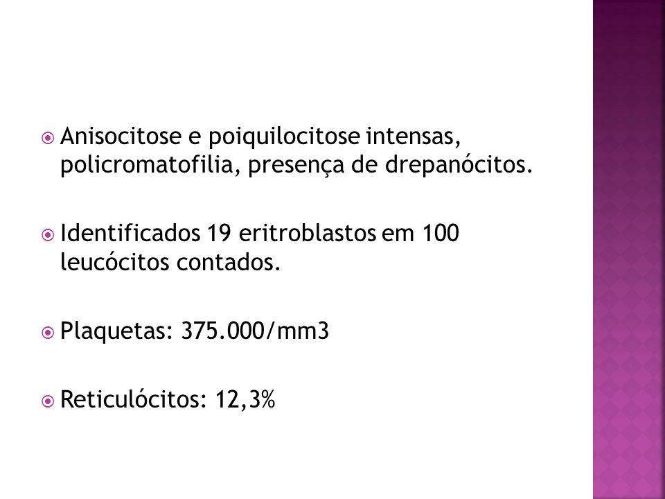  Função hepática: • Bilirrubinas: BT - 4,0 mg/dl (VR: 0,3 – 1,4) BD – 0,3 mg/dl (VR: até 0,3) • Fosfatase alcalina: 160 U/L (VR: 150 – 530) • TGO: 24 U/I (VR: 15-46) TGP: 18 U/I (VR: 11-66) • Atividade de protrombina: 97% • Tempo de tromboplastina parcial ativado: controle = 28 paciente = 31 • Proteínas totais: 6,3 g/dl (VR: 6 - 8) albumina: 3,4 g/dl (VR: 3,5 - 5,0)