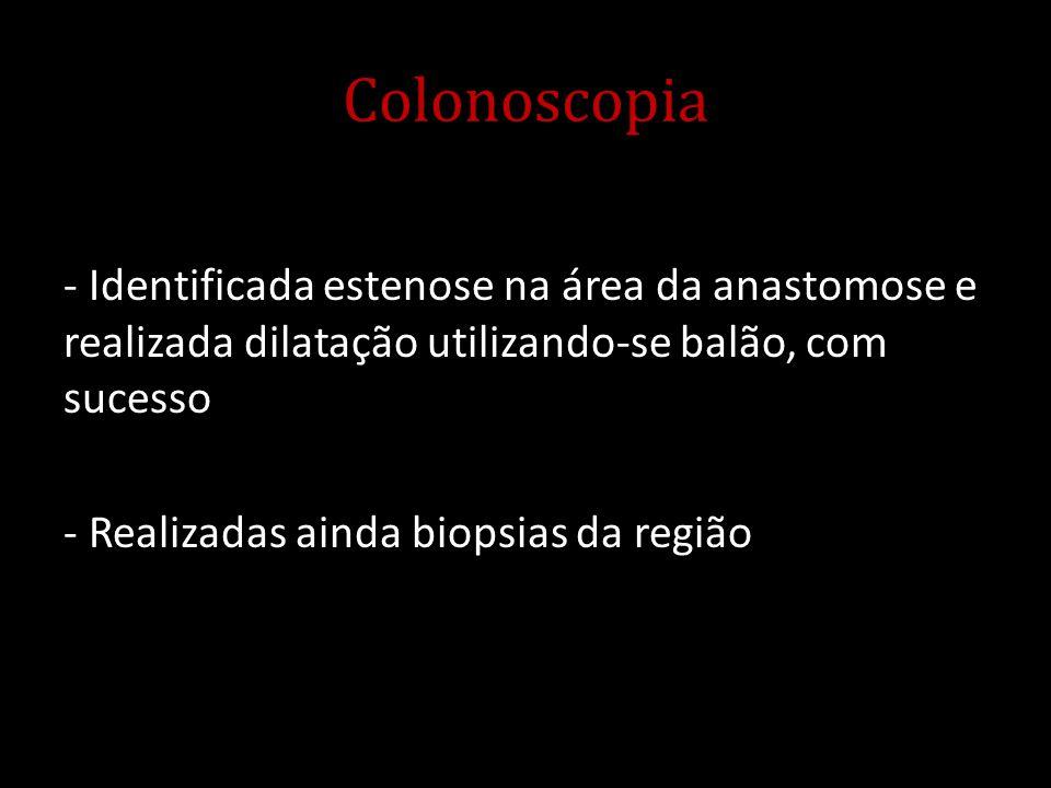 Colonoscopia - Identificada estenose na área da anastomose e realizada dilatação utilizando-se balão, com sucesso - Realizadas ainda biopsias da regiã