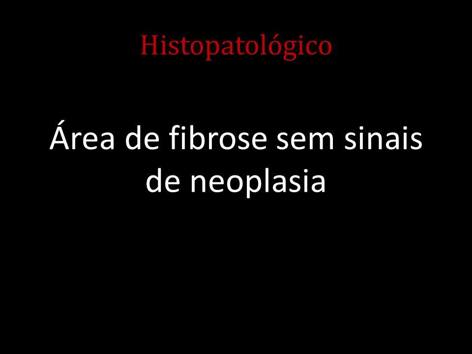Histopatológico Área de fibrose sem sinais de neoplasia