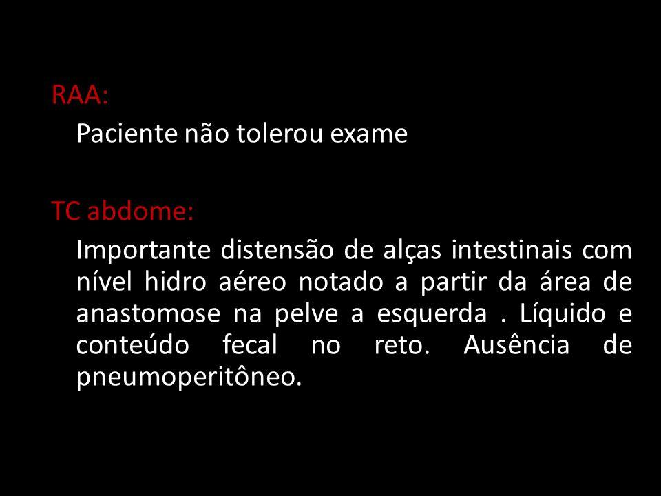RAA: Paciente não tolerou exame TC abdome: Importante distensão de alças intestinais com nível hidro aéreo notado a partir da área de anastomose na pe