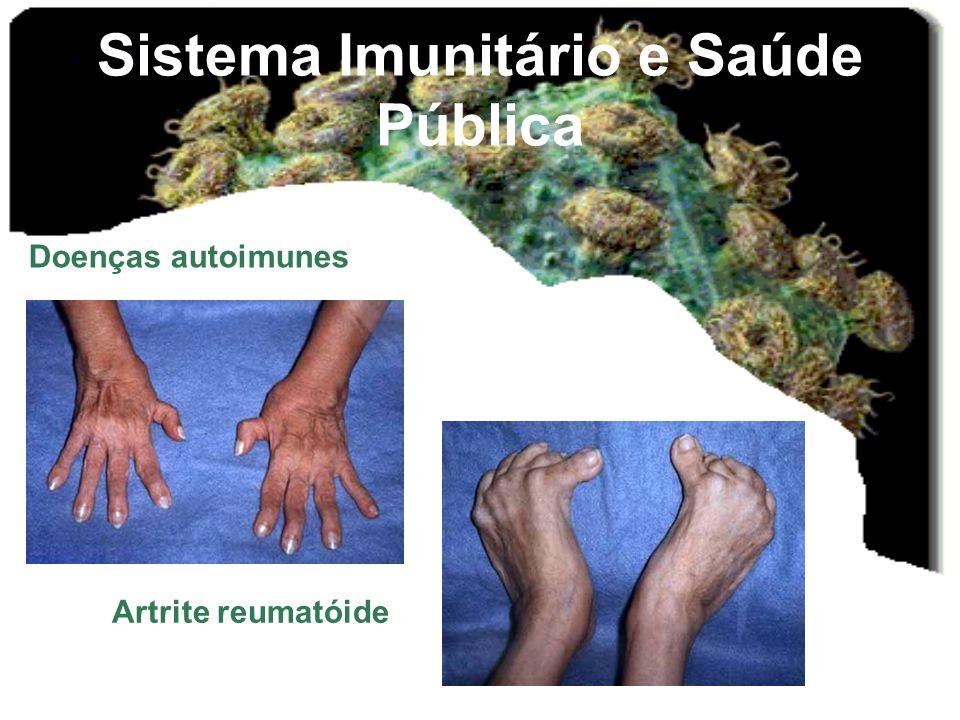 Sistema Imunitário e Saúde Pública Doenças autoimunes Artrite reumatóide