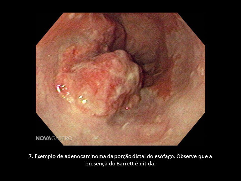 7. Exemplo de adenocarcinoma da porção distal do esôfago. Observe que a presença do Barrett é nítida.