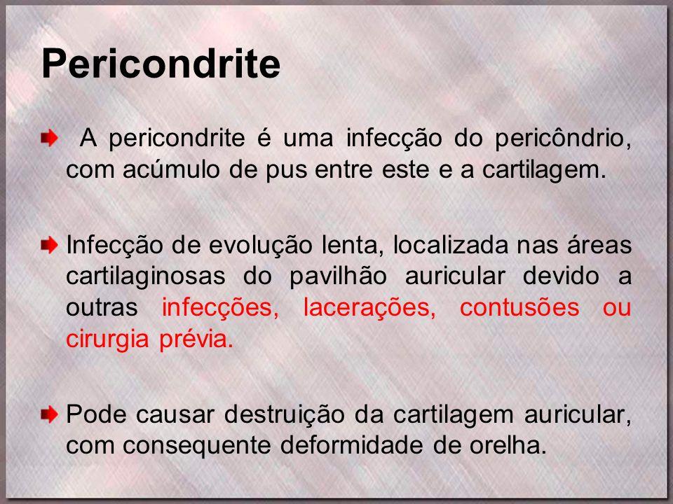 Pericondrite A pericondrite é uma infecção do pericôndrio, com acúmulo de pus entre este e a cartilagem. Infecção de evolução lenta, localizada nas ár