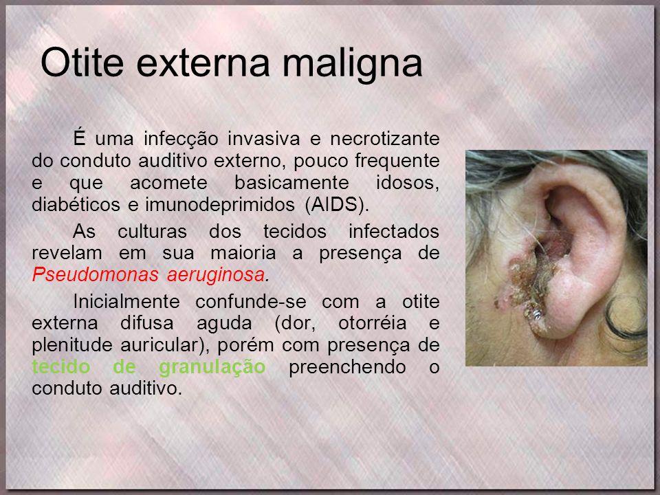 Otite externa maligna É uma infecção invasiva e necrotizante do conduto auditivo externo, pouco frequente e que acomete basicamente idosos, diabéticos