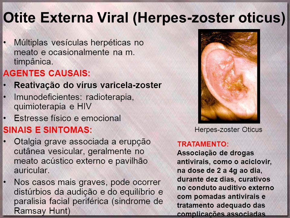 Otite Externa Viral (Herpes-zoster oticus) •Múltiplas vesículas herpéticas no meato e ocasionalmente na m. timpânica. AGENTES CAUSAIS: •Reativação do