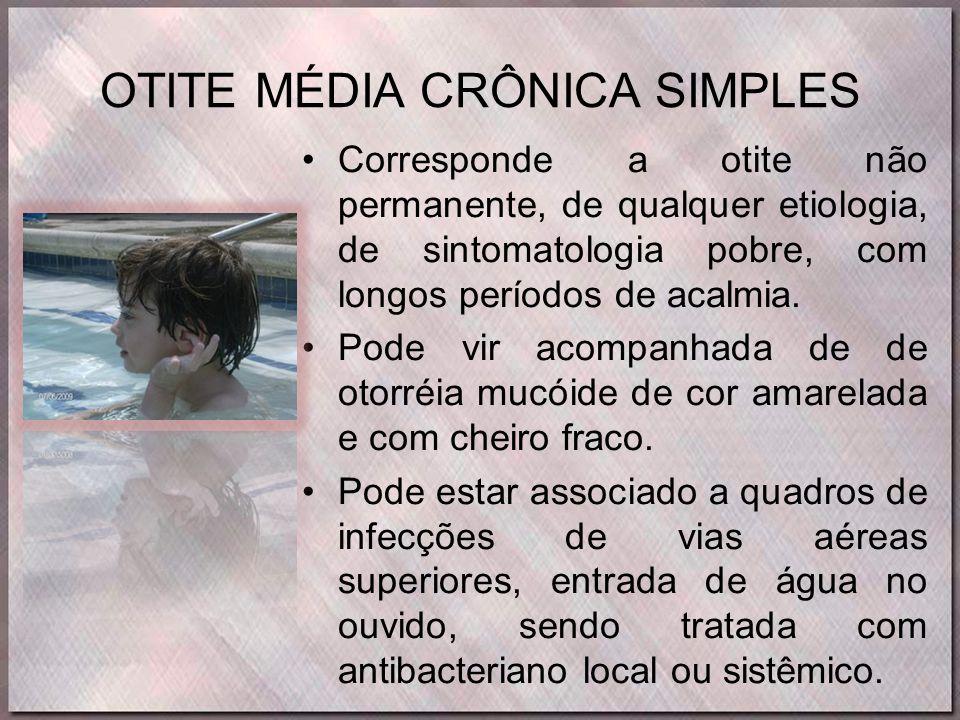 OTITE MÉDIA CRÔNICA SIMPLES •Corresponde a otite não permanente, de qualquer etiologia, de sintomatologia pobre, com longos períodos de acalmia. •Pode