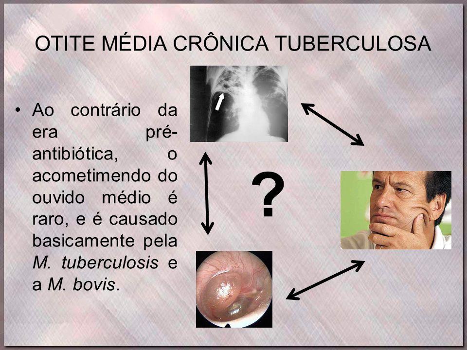 OTITE MÉDIA CRÔNICA TUBERCULOSA •Ao contrário da era pré- antibiótica, o acometimendo do ouvido médio é raro, e é causado basicamente pela M. tubercul