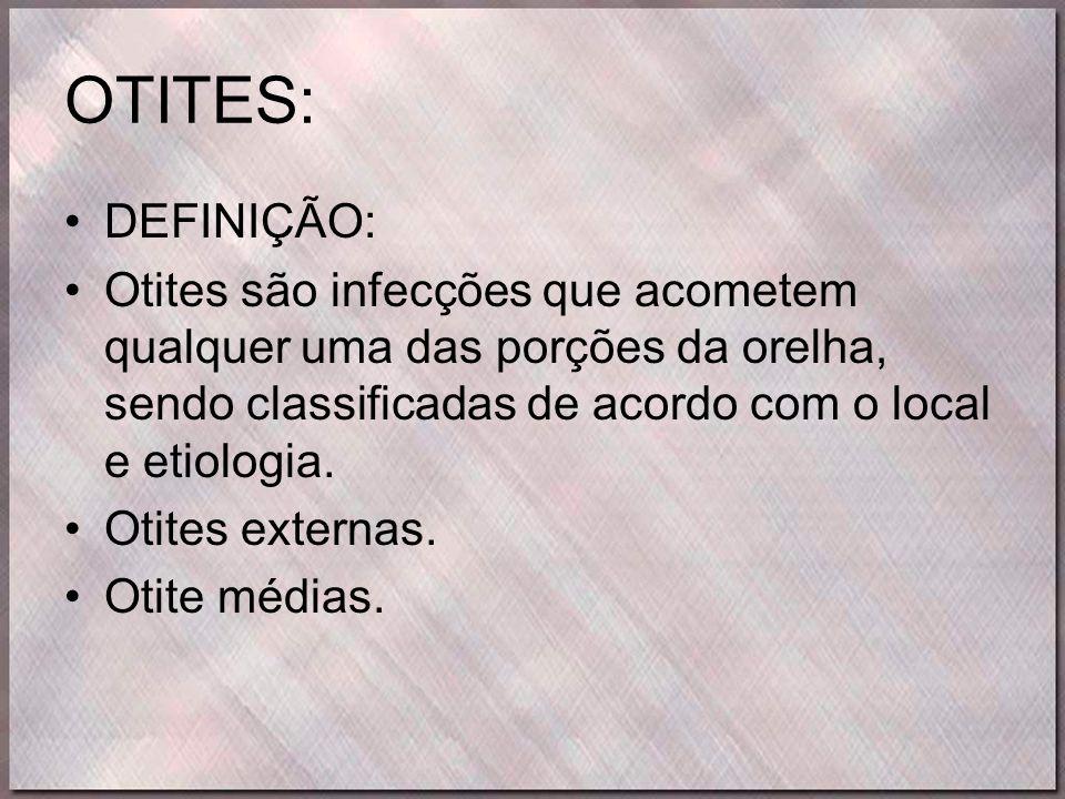 OTITES: •DEFINIÇÃO: •Otites são infecções que acometem qualquer uma das porções da orelha, sendo classificadas de acordo com o local e etiologia. •Oti