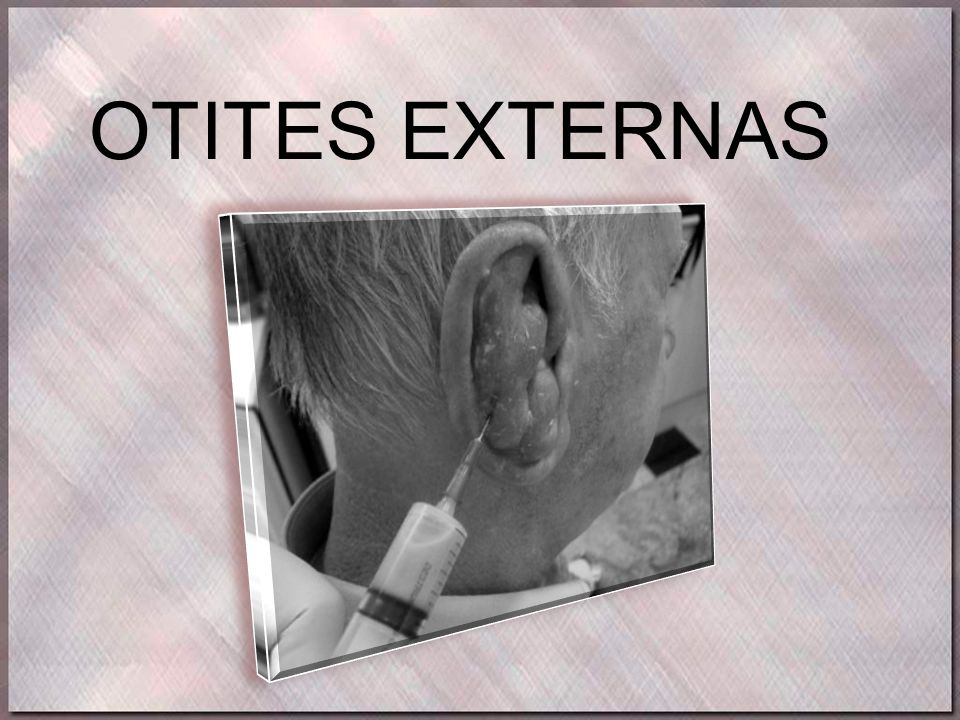 Otite Externa Fúngica (otomicose) •Epitélio do meato acústico externo, formando uma camada fina, removível, frouxa e penuginosa AGENTES CAUSAIS: •Candida albicans: secreção esbranquiçada, nata de leite •Aspergillus flavus: secreção amarelada •Aspergillus fumigatus: secreção acinzentada •Aspergillus niger: preto-esverdeada SINAIS E SINTOMAS: •Prurido*, distúrbio de audição, exsudação com a presença de micélios Otomicose por Aspergillus Flavus TRATAMENTO: Limpeza local, evitar umidade Antimicóticos locais: violeta de gentamicina, nitrato de isoconazol, clotrimazol; em gotas de 8/8h por 15 dias Antibiótico sistêmico: itraconazol, anfotericina B (aspergilose); fluconazol ou cetaconazol (candidíase)