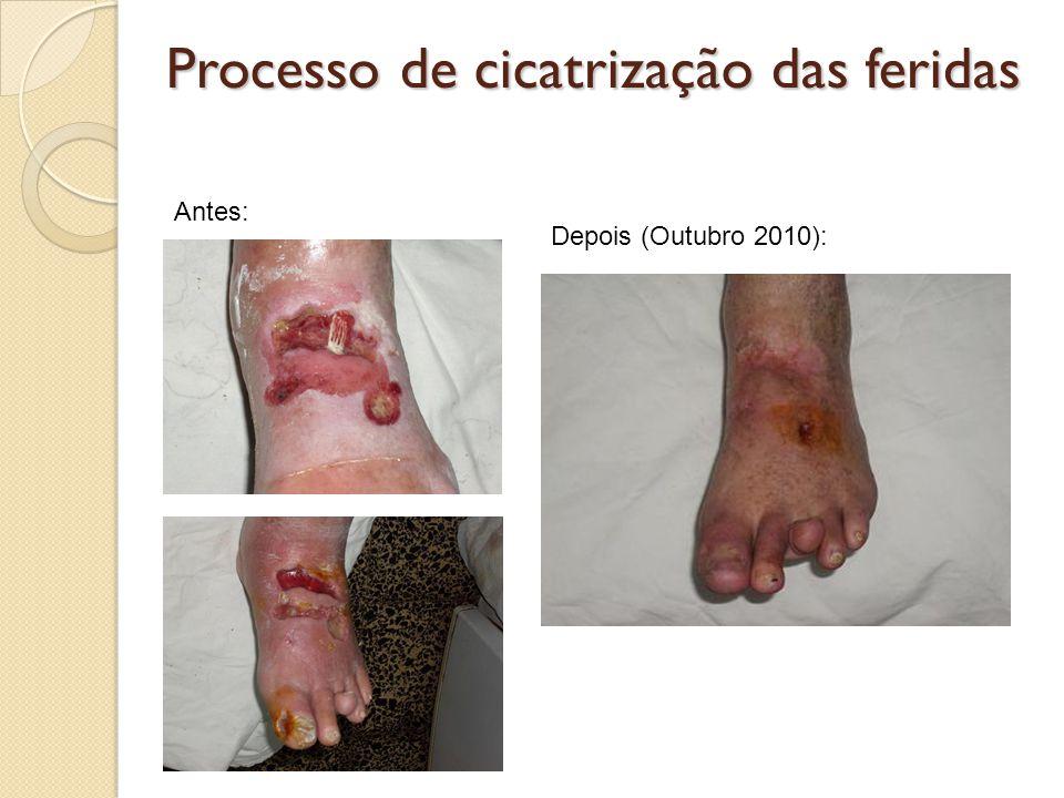Processo de cicatrização das feridas Antes: Depois (Outubro 2010):