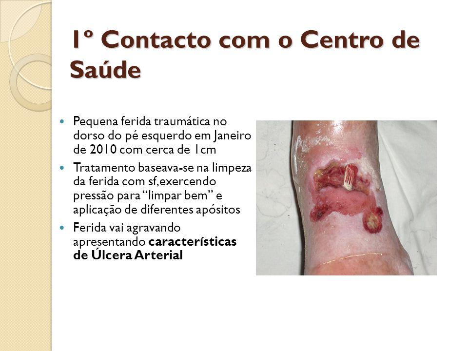 1º Contacto com o Centro de Saúde  Pequena ferida traumática no dorso do pé esquerdo em Janeiro de 2010 com cerca de 1cm  Tratamento baseava-se na l