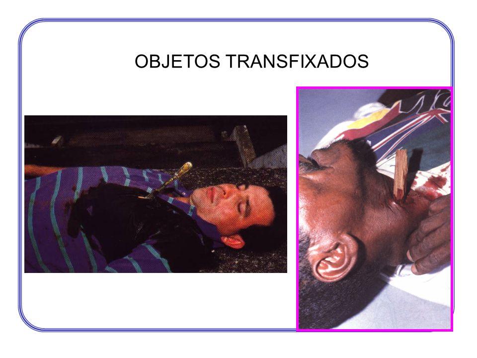 OBJETOS TRANSFIXADOS