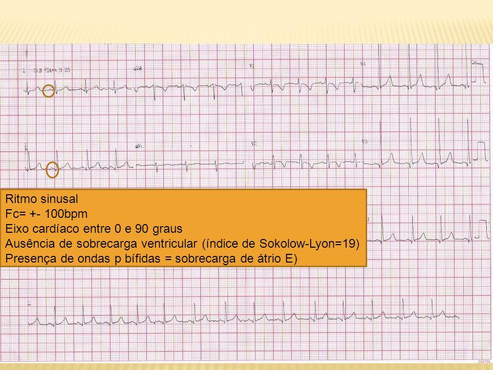 Ritmo sinusal Fc= +- 100bpm Eixo cardíaco entre 0 e 90 graus Ausência de sobrecarga ventricular (índice de Sokolow-Lyon=19) Presença de ondas p bífida
