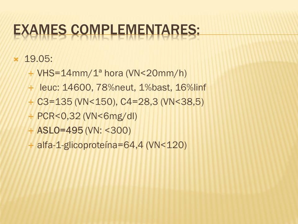  19.05:  VHS=14mm/1ª hora (VN<20mm/h)  leuc: 14600, 78%neut, 1%bast, 16%linf  C3=135 (VN<150), C4=28,3 (VN<38,5)  PCR<0,32 (VN<6mg/dl)  ASLO=495