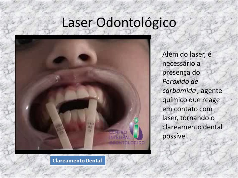Laser Odontológico Clareamento Dental Além do laser, é necessário a presença do Peróxido de carbamida, agente químico que reage em contato com laser,