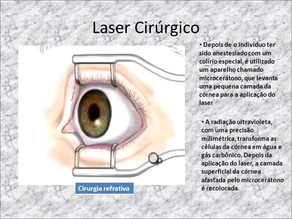 Laser Cirúrgico • Depois de o indivíduo ter sido anestesiado com um colírio especial, é utilizado um aparelho chamado microcerátono, que levanta uma p