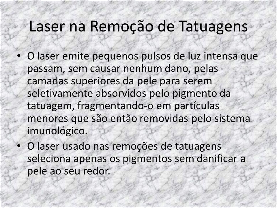 Laser na Remoção de Tatuagens • O laser emite pequenos pulsos de luz intensa que passam, sem causar nenhum dano, pelas camadas superiores da pele para