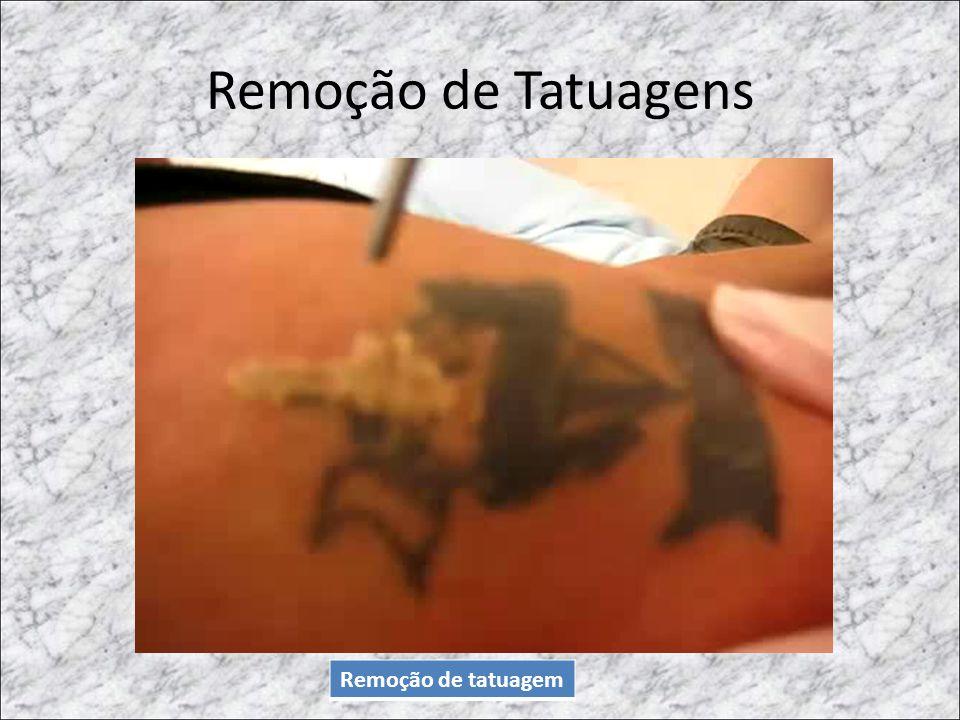 Remoção de Tatuagens Remoção de tatuagem