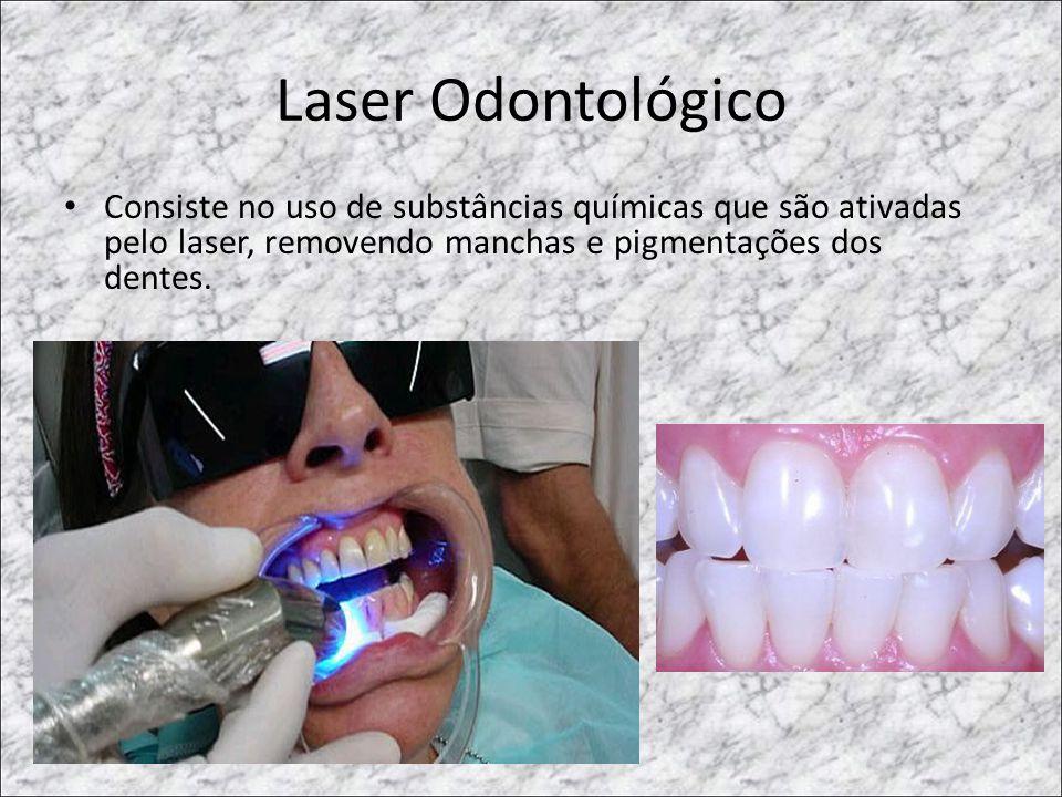 Laser Odontológico • Consiste no uso de substâncias químicas que são ativadas pelo laser, removendo manchas e pigmentações dos dentes.