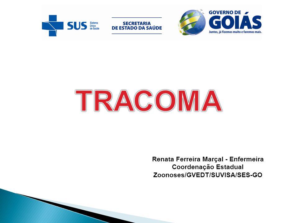 Classificação diagnóstica OMS Tracoma Inflamatório Folicular (TF) quando estão presentes no mínimo 5 folículos (formação arredondadas e mais claras) com pelo menos 0,5 mm de diâmetro, na conjuntiva da pálpebra superior do olho, em sua região central;