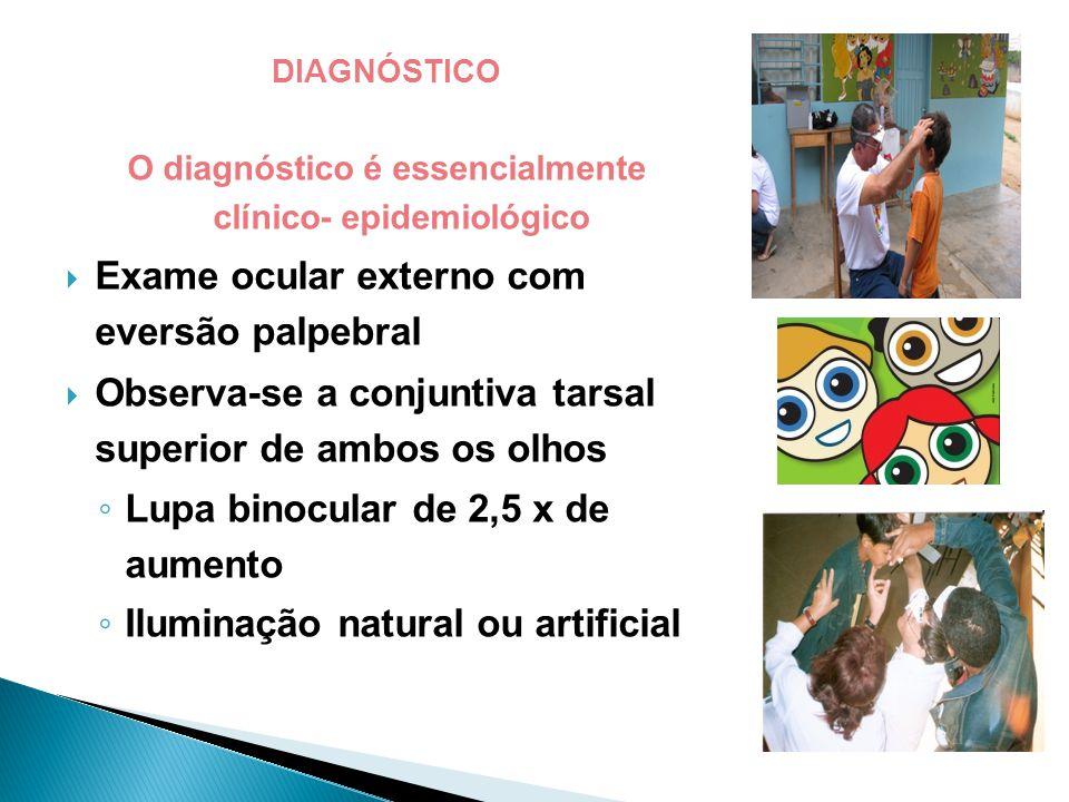 DIAGNÓSTICO O diagnóstico é essencialmente clínico- epidemiológico  Exame ocular externo com eversão palpebral  Observa-se a conjuntiva tarsal superior de ambos os olhos ◦ Lupa binocular de 2,5 x de aumento ◦ Iluminação natural ou artificial DIAGNÓSTICO O diagnóstico é essencialmente clínico- epidemiológico  Exame ocular externo com eversão palpebral  Observa-se a conjuntiva tarsal superior de ambos os olhos ◦ Lupa binocular de 2,5 x de aumento ◦ Iluminação natural ou artificial