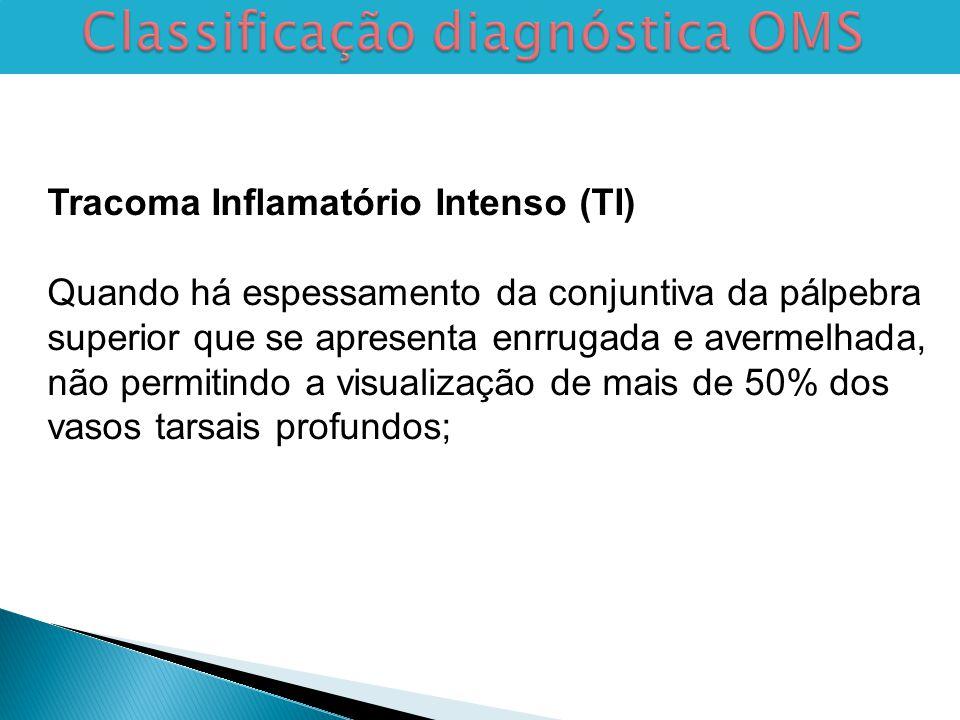 Classificação diagnóstica OMS Tracoma Inflamatório Intenso (TI) Quando há espessamento da conjuntiva da pálpebra superior que se apresenta enrrugada e avermelhada, não permitindo a visualização de mais de 50% dos vasos tarsais profundos;