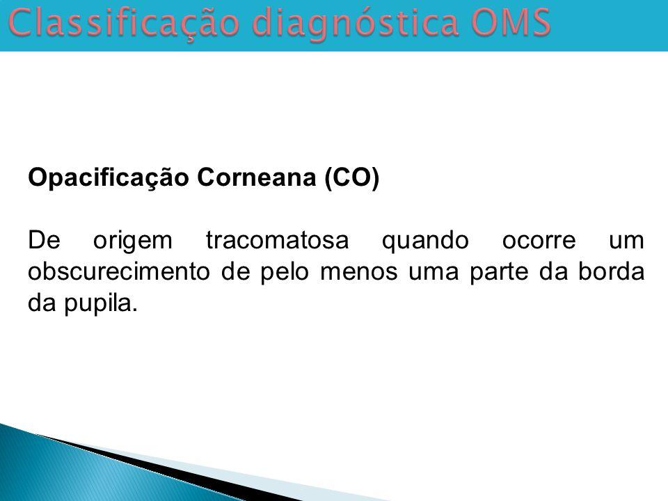 Classificação diagnóstica OMS Opacificação Corneana (CO) De origem tracomatosa quando ocorre um obscurecimento de pelo menos uma parte da borda da pupila.