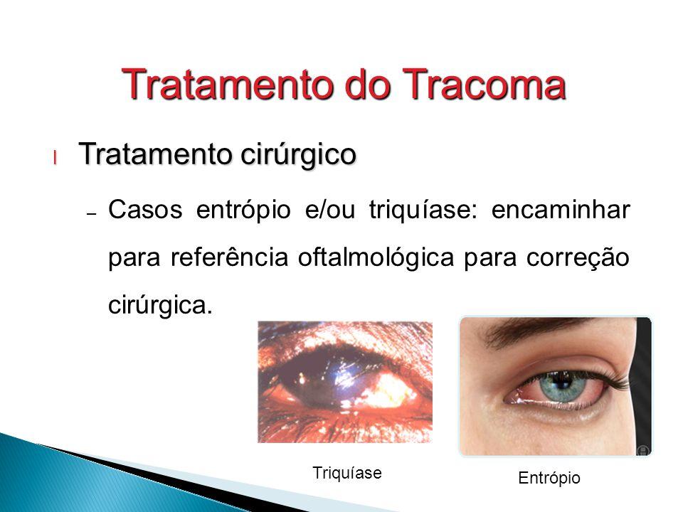 Tratamento do Tracoma l Tratamento cirúrgico – Casos entrópio e/ou triquíase: encaminhar para referência oftalmológica para correção cirúrgica.