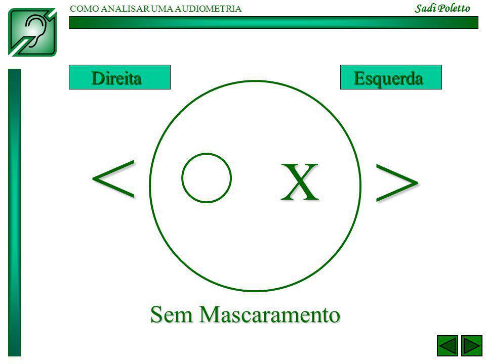 COMO ANALISAR UMA AUDIOMETRIA Sadi Poletto < > X DireitaEsquerda Sem Mascaramento
