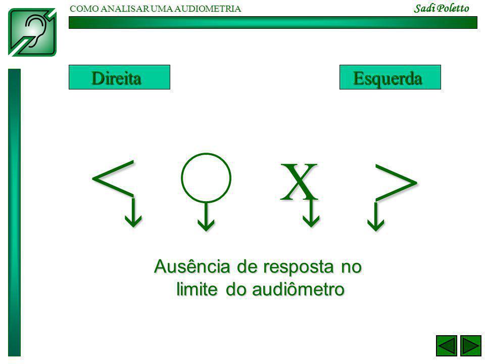 COMO ANALISAR UMA AUDIOMETRIA Sadi Poletto < > X DireitaEsquerda     Ausência de resposta no limite do audiômetro