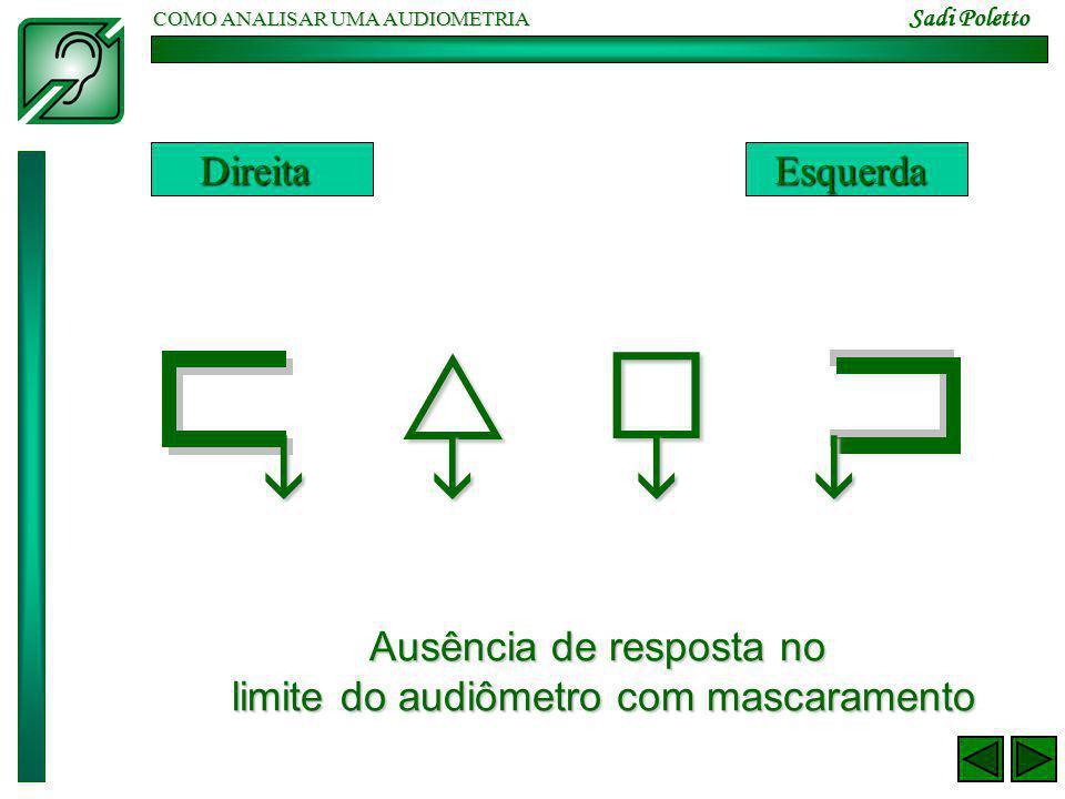 COMO ANALISAR UMA AUDIOMETRIA Sadi Poletto  DireitaEsquerda Ausência de resposta no limite do audiômetro com mascaramento  