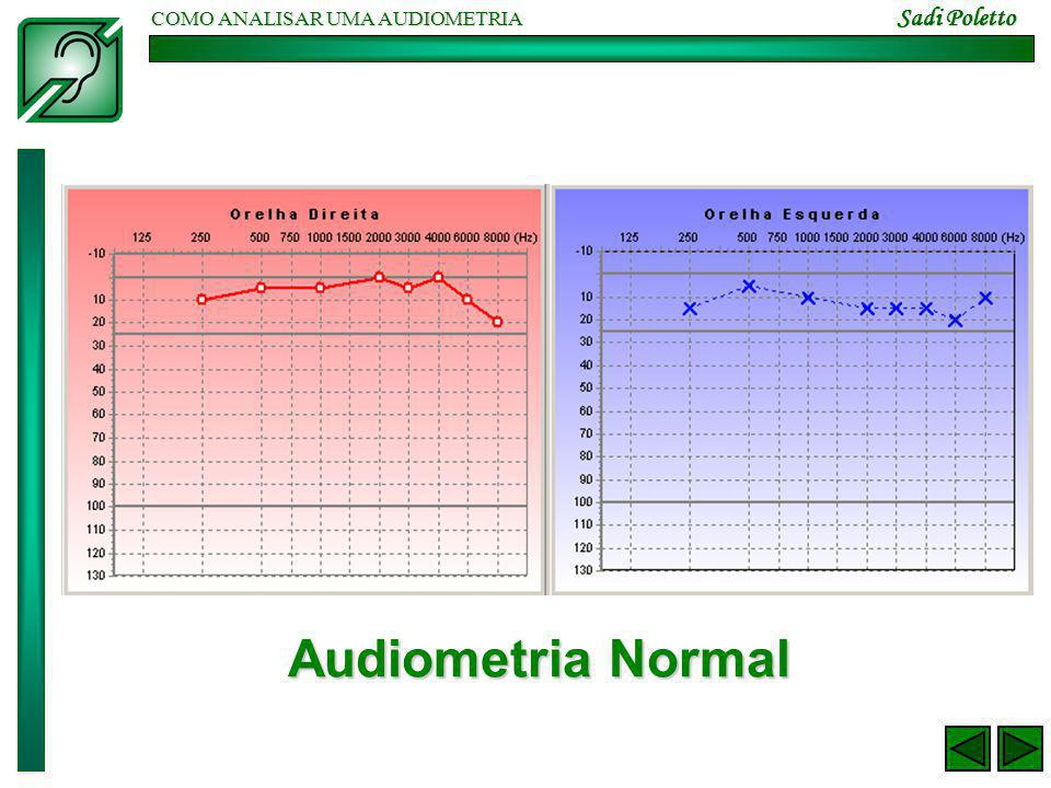 COMO ANALISAR UMA AUDIOMETRIA Sadi Poletto Audiometria Normal