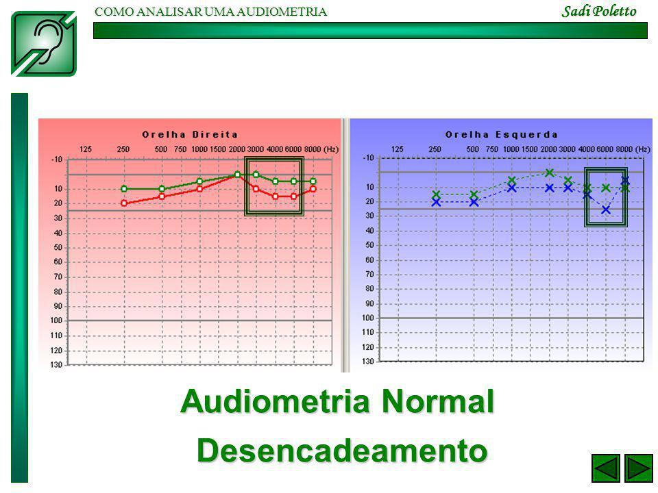 COMO ANALISAR UMA AUDIOMETRIA Sadi Poletto Audiometria Normal Desencadeamento