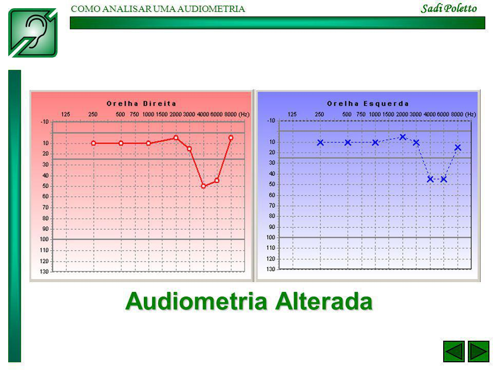COMO ANALISAR UMA AUDIOMETRIA Sadi Poletto Audiometria Alterada