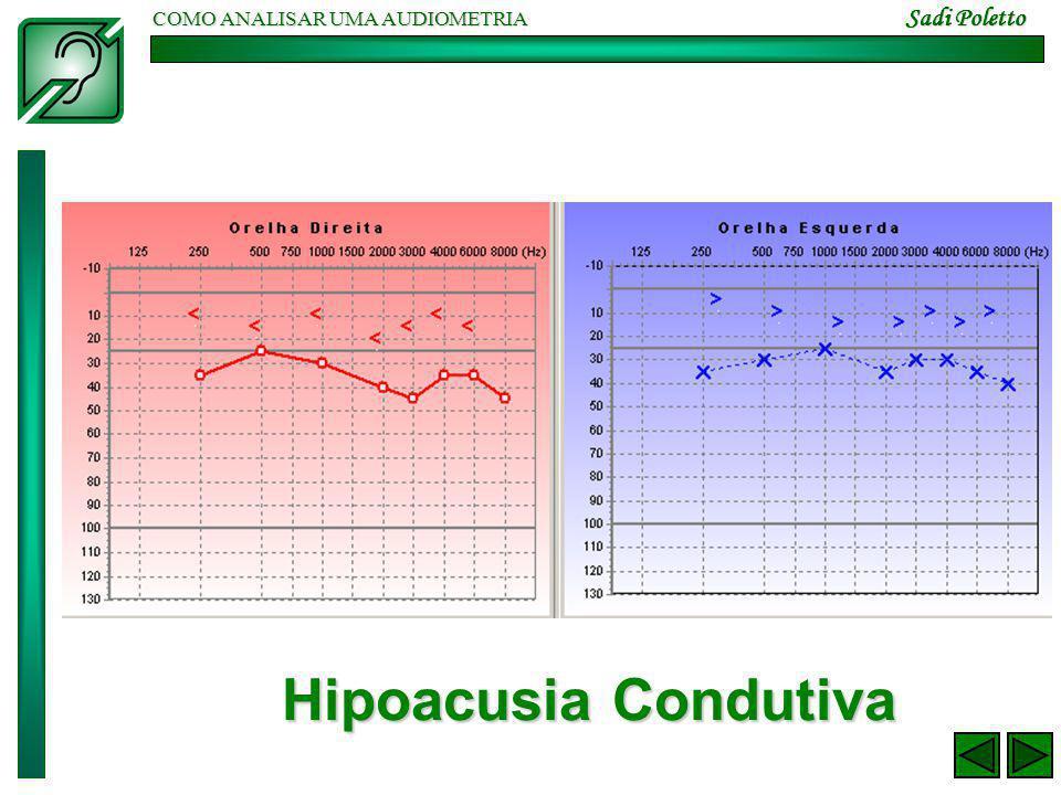 COMO ANALISAR UMA AUDIOMETRIA Sadi Poletto Hipoacusia Condutiva