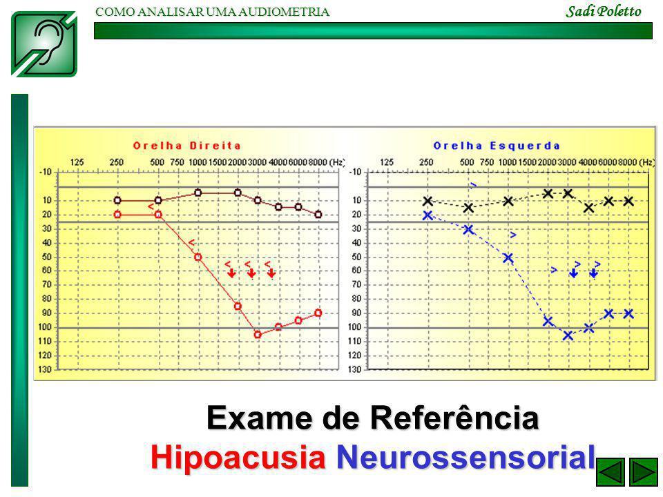 COMO ANALISAR UMA AUDIOMETRIA Sadi Poletto Exame de Referência Hipoacusia Neurossensorial