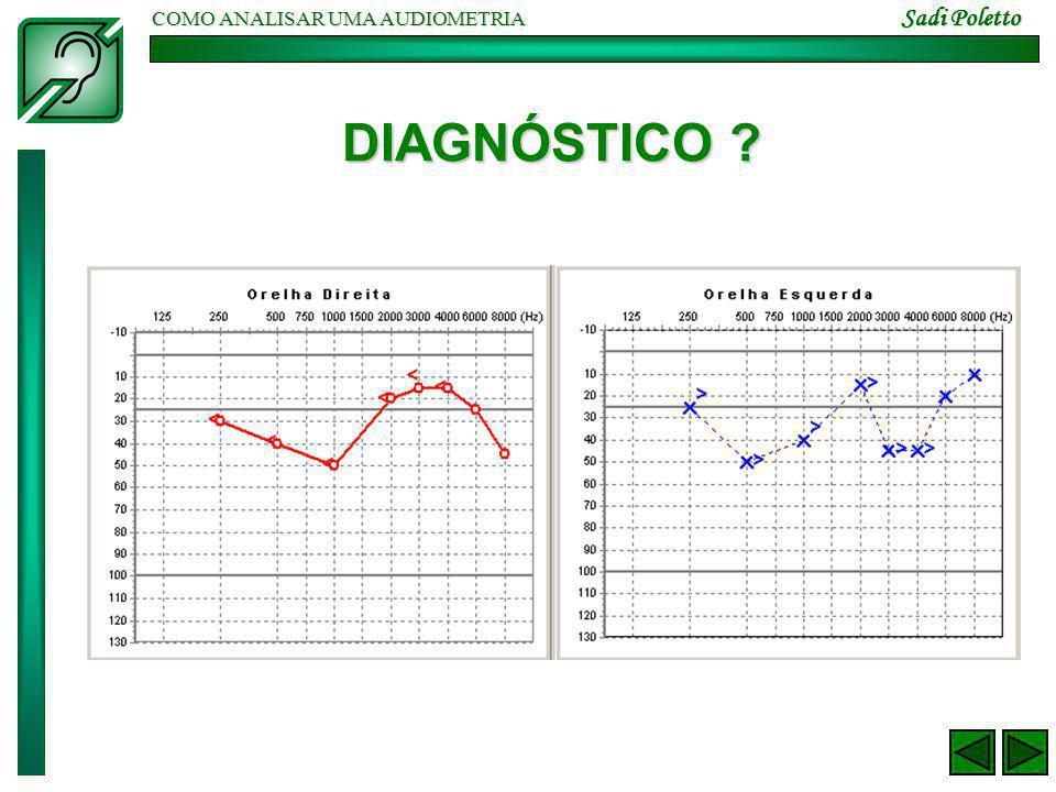 COMO ANALISAR UMA AUDIOMETRIA Sadi Poletto TEMPOARY THRESHOLD SHIFT – 103 dB(A)/2h Fonte: Patologia do Trabalho – René Mendes 2a.