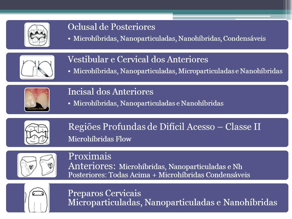 Oclusal de Posteriores •Microhíbridas, Nanoparticuladas, Nanohíbridas, Condensáveis Vestibular e Cervical dos Anteriores •Microhíbridas, Nanoparticula