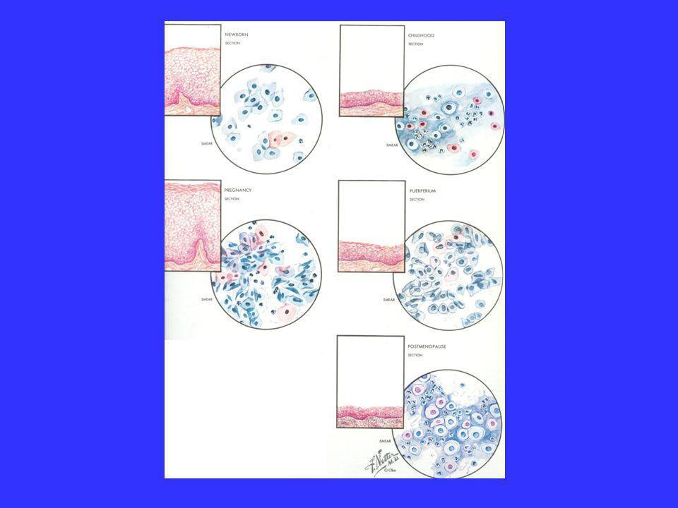 Distúrbios de ciclo menstrual  Hipermenorréia/ Menorragia  (Capsella bursa-pastoris D1/Majorana D1/Achillea Millefollium D1/ QuercusD1/ Urtica dioica D1)  Menodoron (Capsella bursa-pastoris D1/Majorana D1/Achillea Millefollium D1/ QuercusD1/ Urtica dioica D1)  CoralliumD6/Stibium D6  Capsella D1/Hamamellis D1/Hydrastis D1/ Secale cornutum D1/ Tormenttilla D1  Urtica D2 ferro culta  Berberis, fructus D2/Urtica urens D3  Corallium/Capsela/stibium D8 (Sirimim)  Ovarium composto (Apis regina D6/Argentum praepD6/OvariumD6